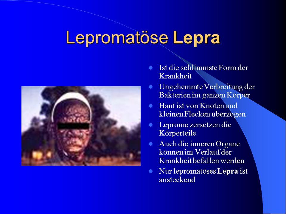 Lepromatöse Lepra Ist die schlimmste Form der Krankheit Ungehemmte Verbreitung der Bakterien im ganzen Körper Haut ist von Knoten und kleinen Flecken