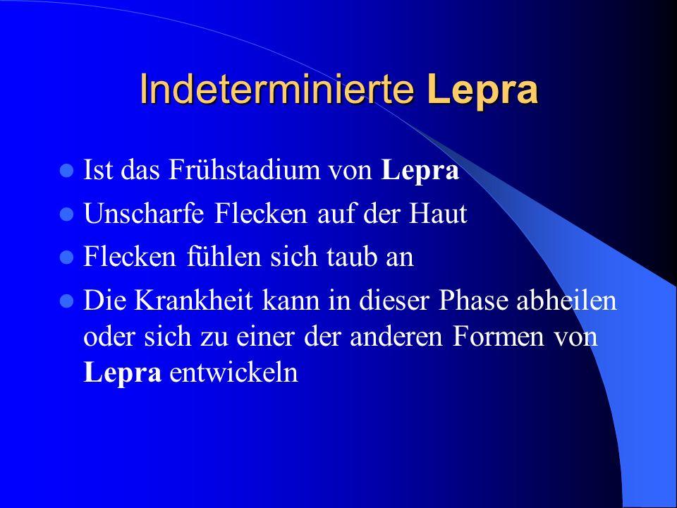 Indeterminierte Lepra Ist das Frühstadium von Lepra Unscharfe Flecken auf der Haut Flecken fühlen sich taub an Die Krankheit kann in dieser Phase abhe
