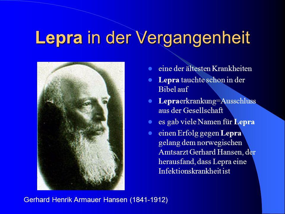 Lepra in der Vergangenheit eine der ältesten Krankheiten Lepra tauchte schon in der Bibel auf Lepraerkrankung=Ausschluss aus der Gesellschaft es gab v