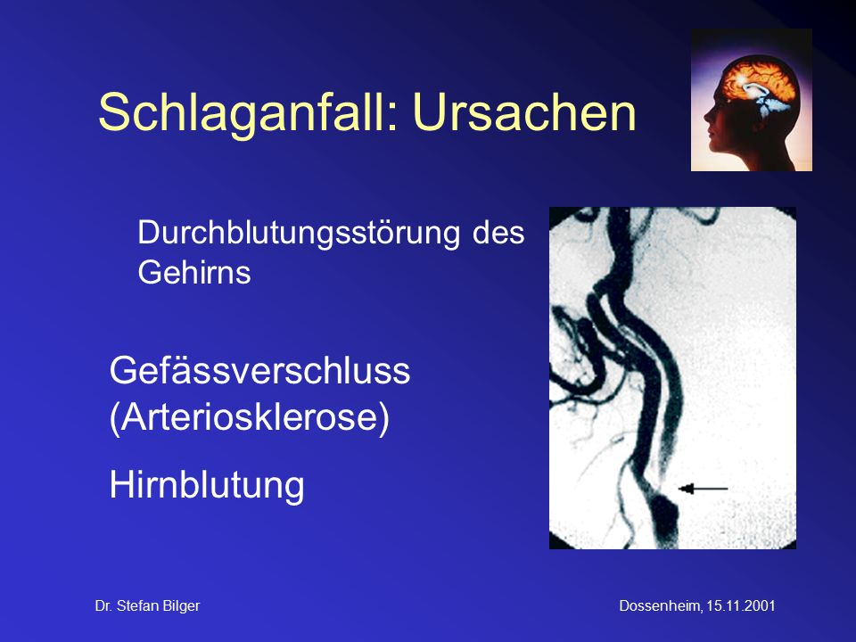 Dr. Stefan BilgerDossenheim, 15.11.2001 Schlaganfall: Risikofaktoren
