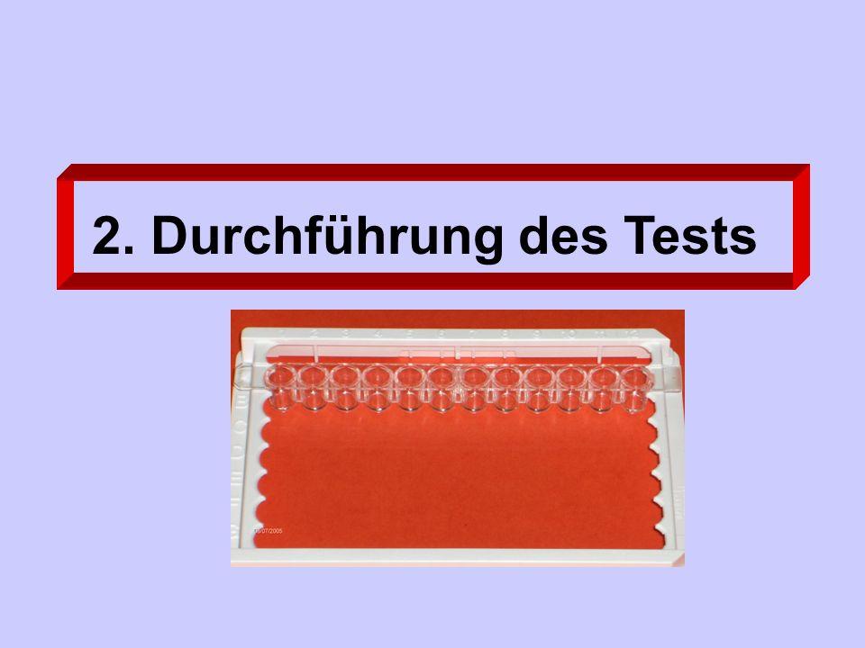 2. Durchführung des Tests