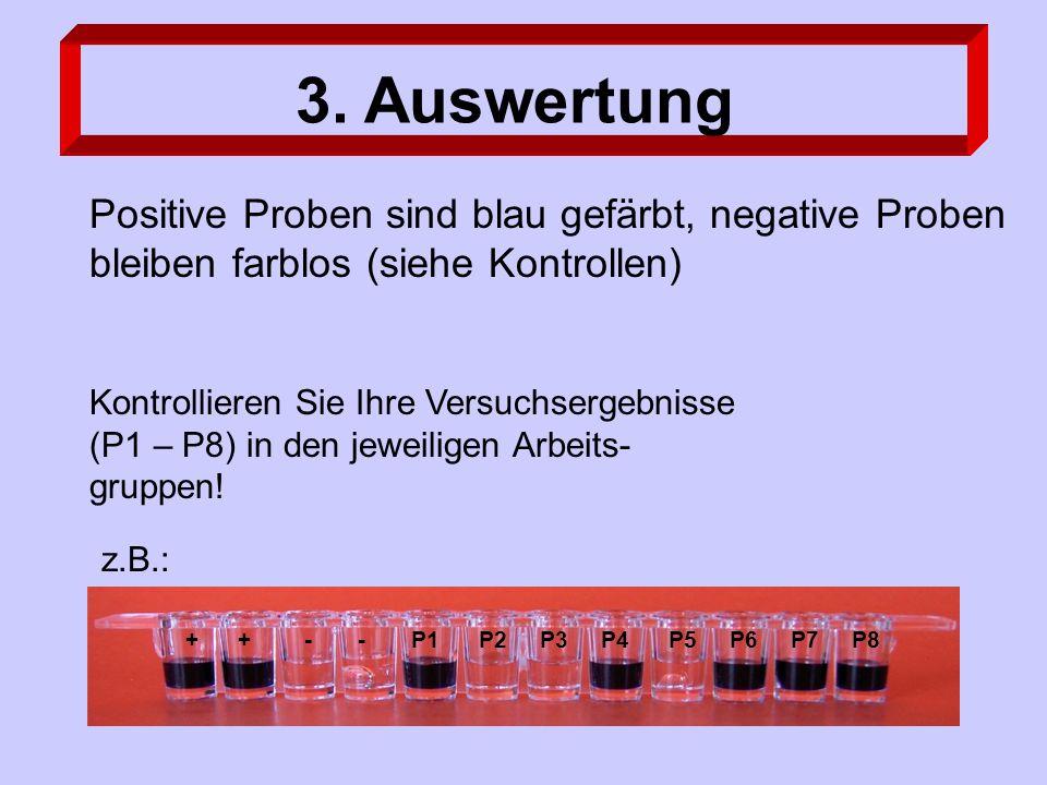3. Auswertung Positive Proben sind blau gefärbt, negative Proben bleiben farblos (siehe Kontrollen) Kontrollieren Sie Ihre Versuchsergebnisse (P1 – P8