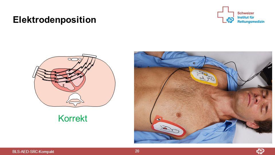 BLS-AED-SRC-Kompakt 20 Elektrodenposition Korrekt Falsch