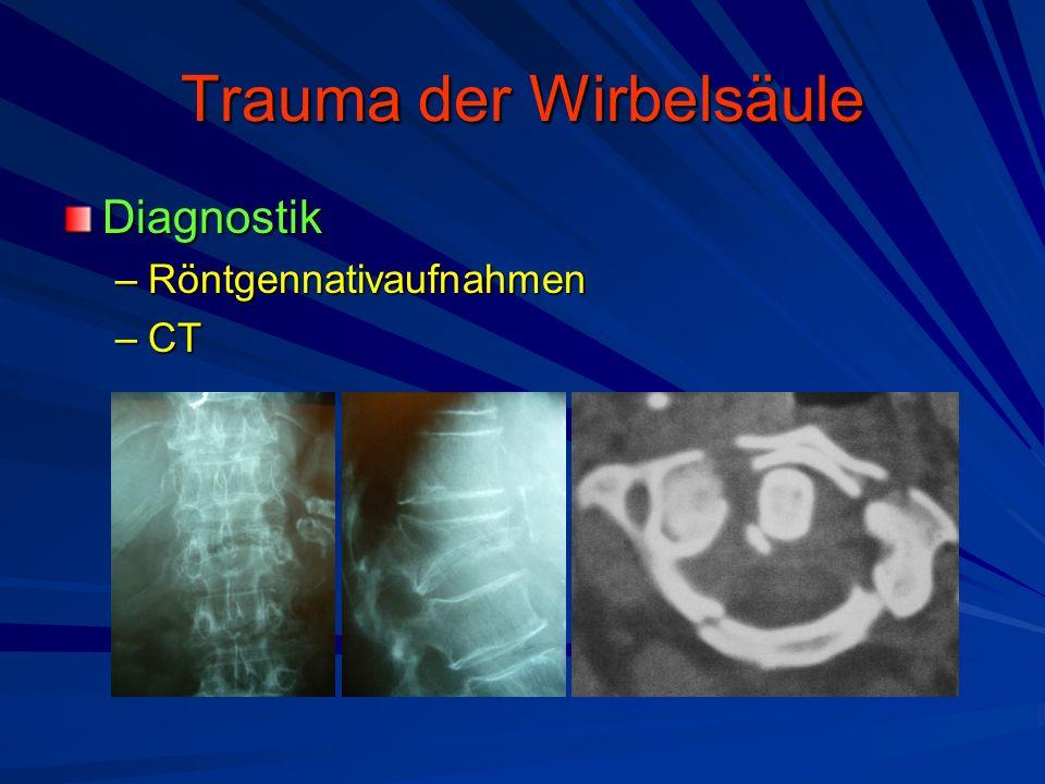 Trauma der Wirbelsäule Diagnostik –Röntgennativaufnahmen –CT