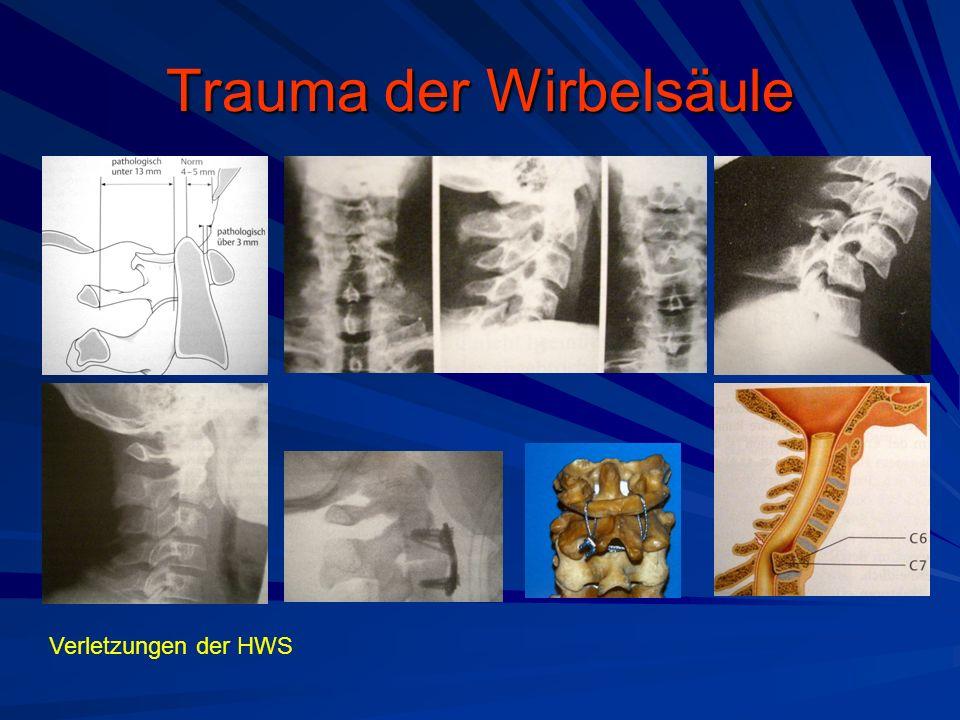 Trauma der Wirbelsäule Verletzungen der HWS