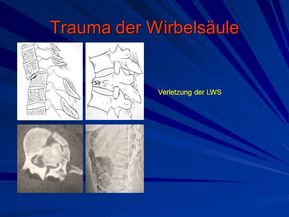 Trauma der Wirbelsäule Verletzung der LWS
