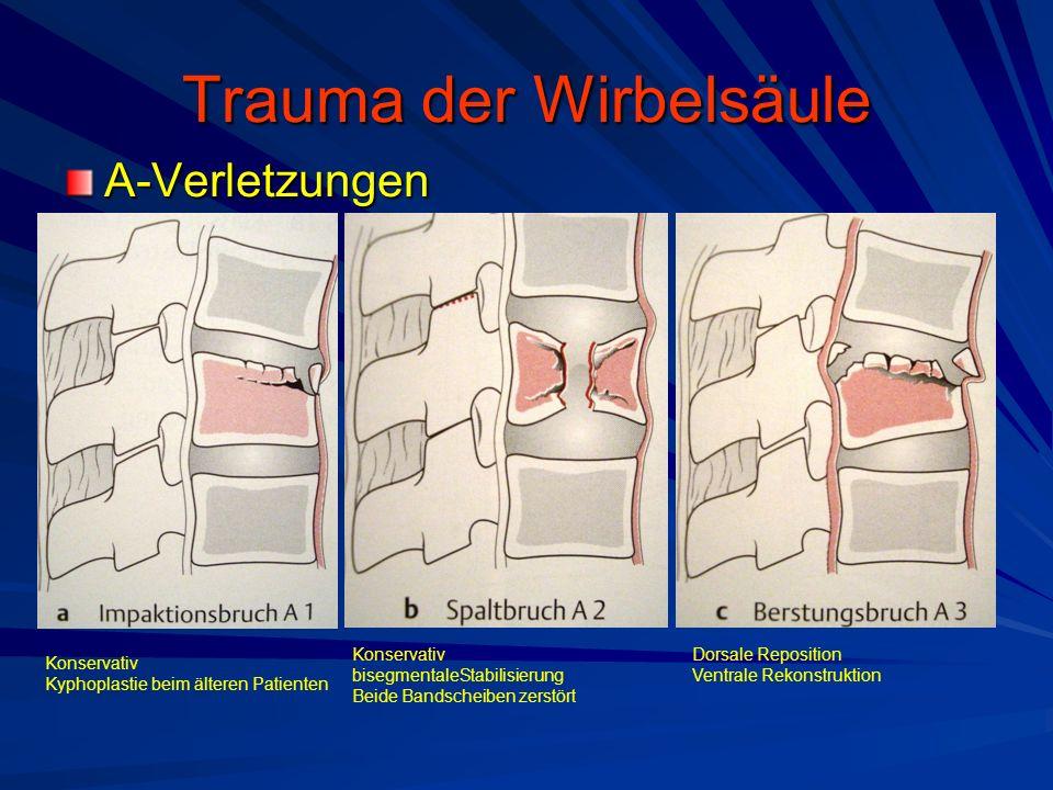 Trauma der Wirbelsäule A-Verletzungen Konservativ Kyphoplastie beim älteren Patienten Konservativ bisegmentaleStabilisierung Beide Bandscheiben zerstö