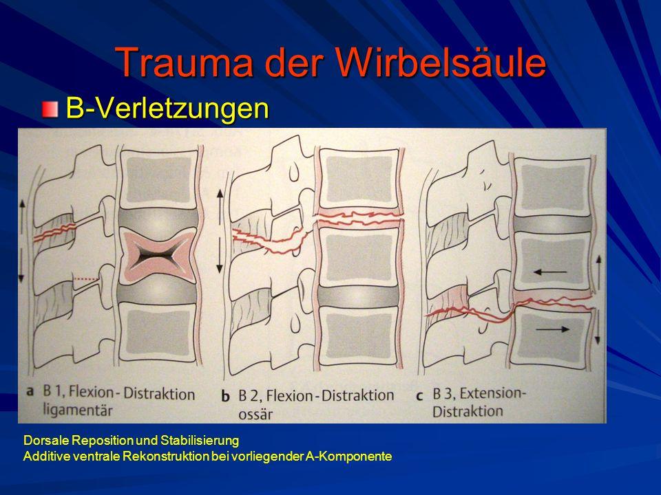 Trauma der Wirbelsäule B-Verletzungen Dorsale Reposition und Stabilisierung Additive ventrale Rekonstruktion bei vorliegender A-Komponente