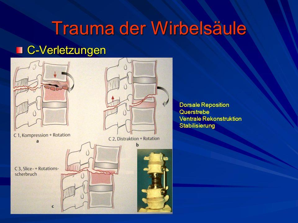 Trauma der Wirbelsäule C-Verletzungen Dorsale Reposition Querstrebe Ventrale Rekonstruktion Stabilisierung