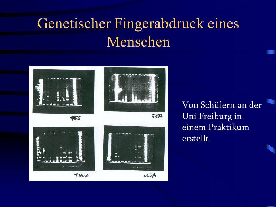 Genetischer Fingerabdruck eines Menschen Von Schülern an der Uni Freiburg in einem Praktikum erstellt.