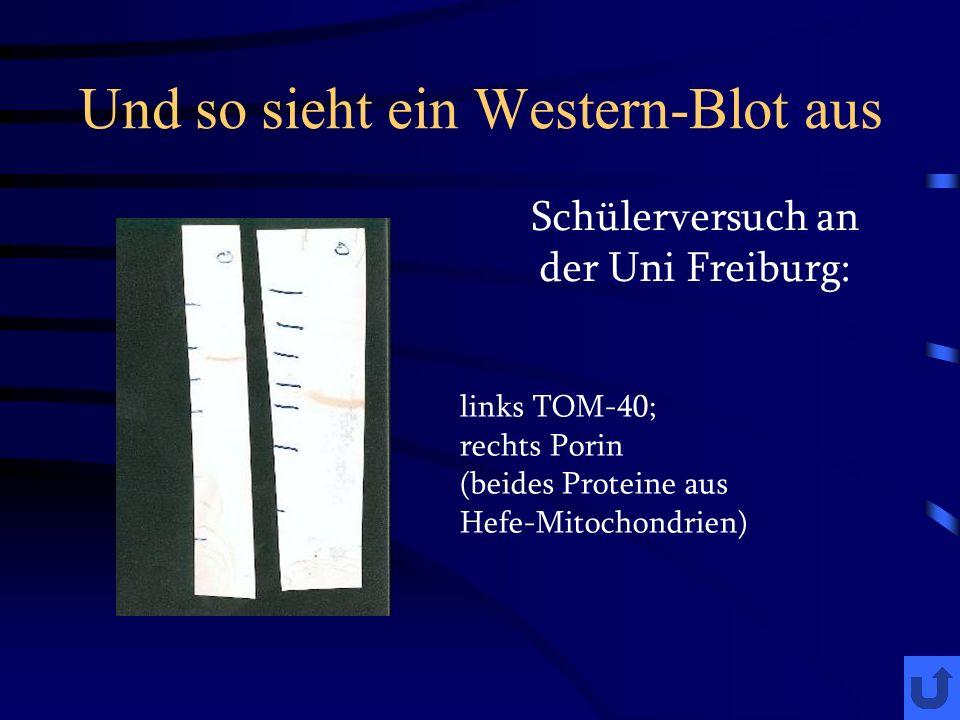 Und so sieht ein Western-Blot aus Schülerversuch an der Uni Freiburg: links TOM-40; rechts Porin (beides Proteine aus Hefe-Mitochondrien)