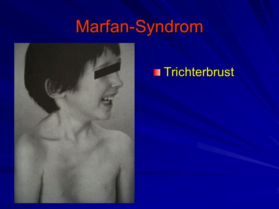 Marfan-Syndrom Trichterbrust