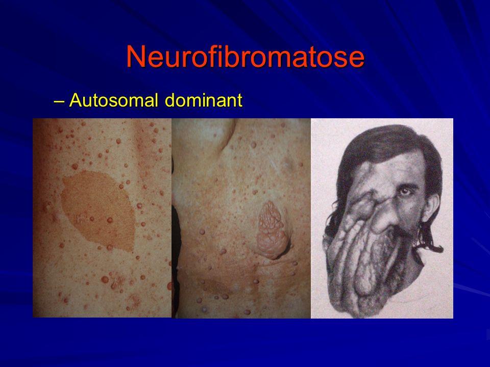 Neurofibromatose –Autosomal dominant