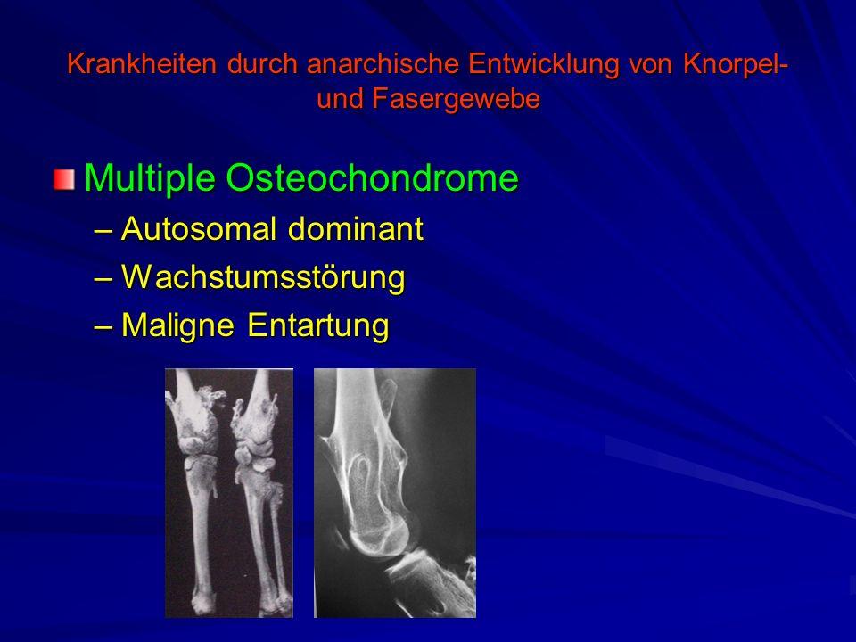 Krankheiten durch anarchische Entwicklung von Knorpel- und Fasergewebe Multiple Osteochondrome –Autosomal dominant –Wachstumsstörung –Maligne Entartun