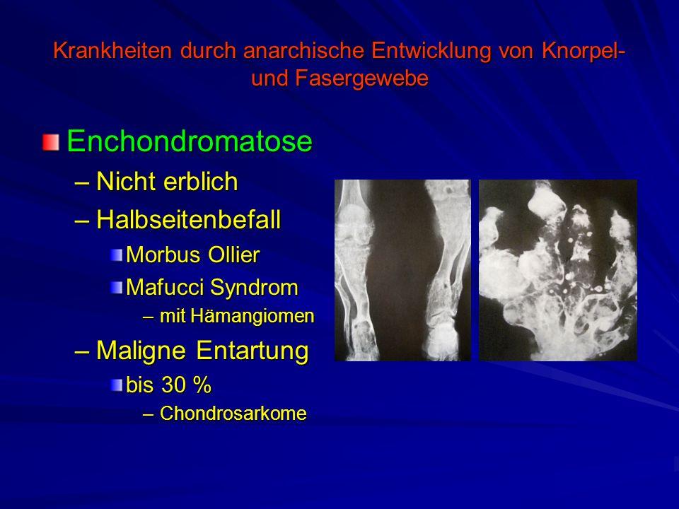 Krankheiten durch anarchische Entwicklung von Knorpel- und Fasergewebe Enchondromatose –Nicht erblich –Halbseitenbefall Morbus Ollier Mafucci Syndrom
