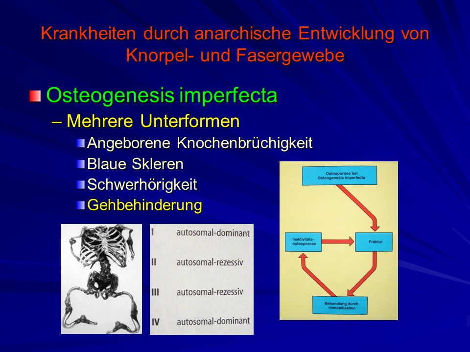 Krankheiten durch anarchische Entwicklung von Knorpel- und Fasergewebe Osteogenesis imperfecta –Mehrere Unterformen Angeborene Knochenbrüchigkeit Blau