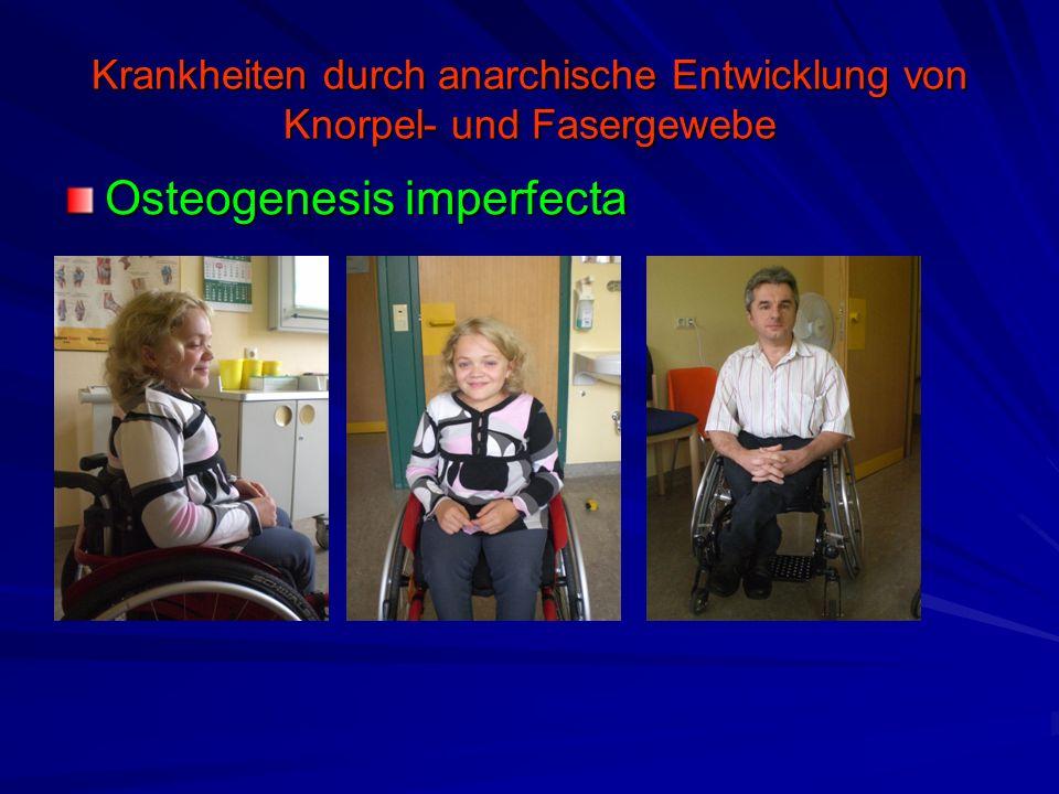 Krankheiten durch anarchische Entwicklung von Knorpel- und Fasergewebe Osteogenesis imperfecta