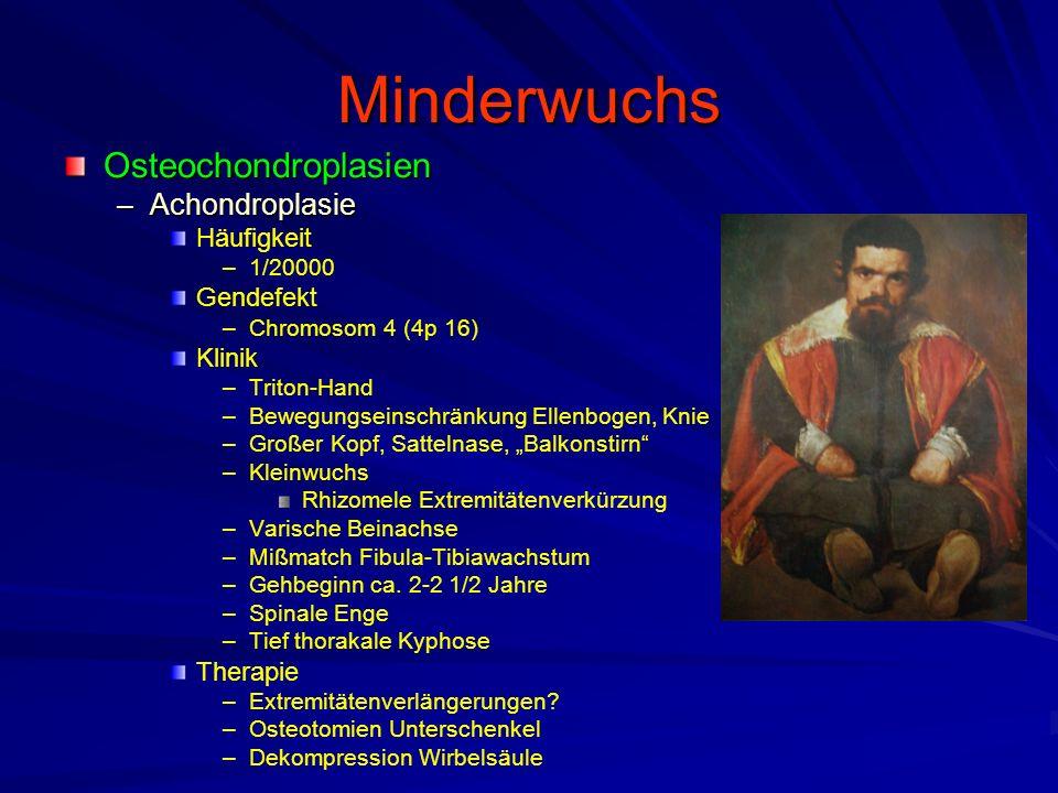 Minderwuchs Osteochondroplasien –Achondroplasie Häufigkeit – –1/20000 Gendefekt – –Chromosom 4 (4p 16) Klinik – –Triton-Hand – –Bewegungseinschränkung