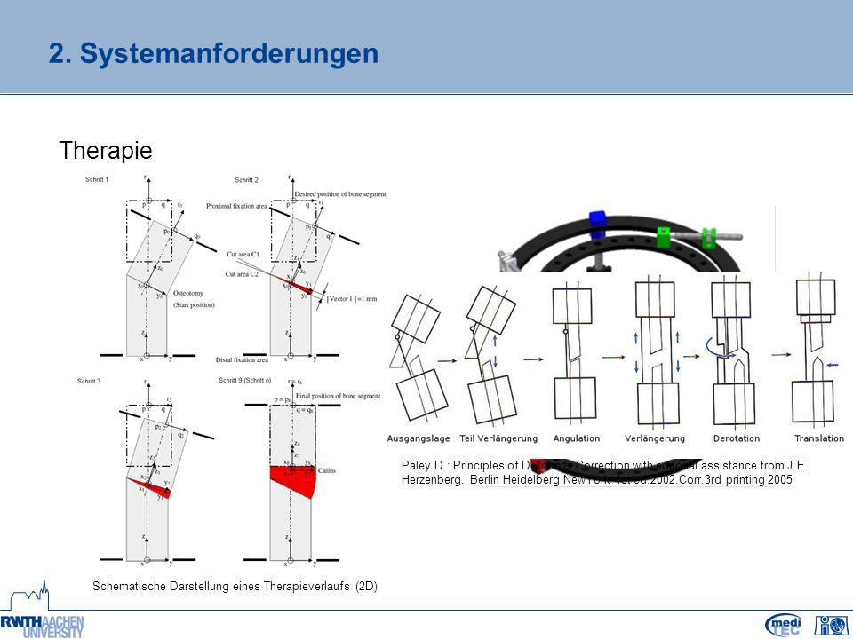 2. Systemanforderungen Therapie Schematische Darstellung eines Therapieverlaufs (2D) Paley D.: Principles of Deformity Correction with editorial assis