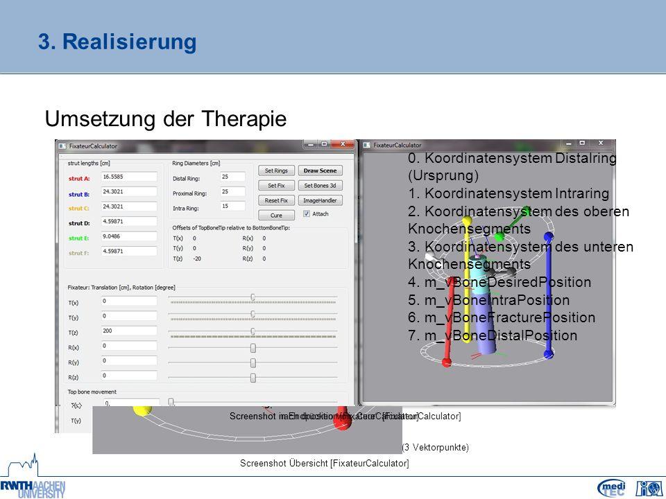 3. Realisierung Umsetzung der Therapie Screenshot vereinfachte Eingabe der Knochenkoordinaten (3 Vektorpunkte) Screenshot Übersicht [FixateurCalculato