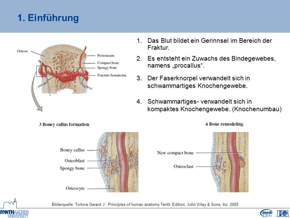 3. Realisierung Darstellung der Knochen