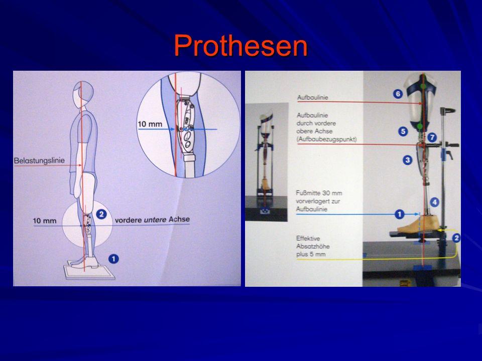 Prothesen