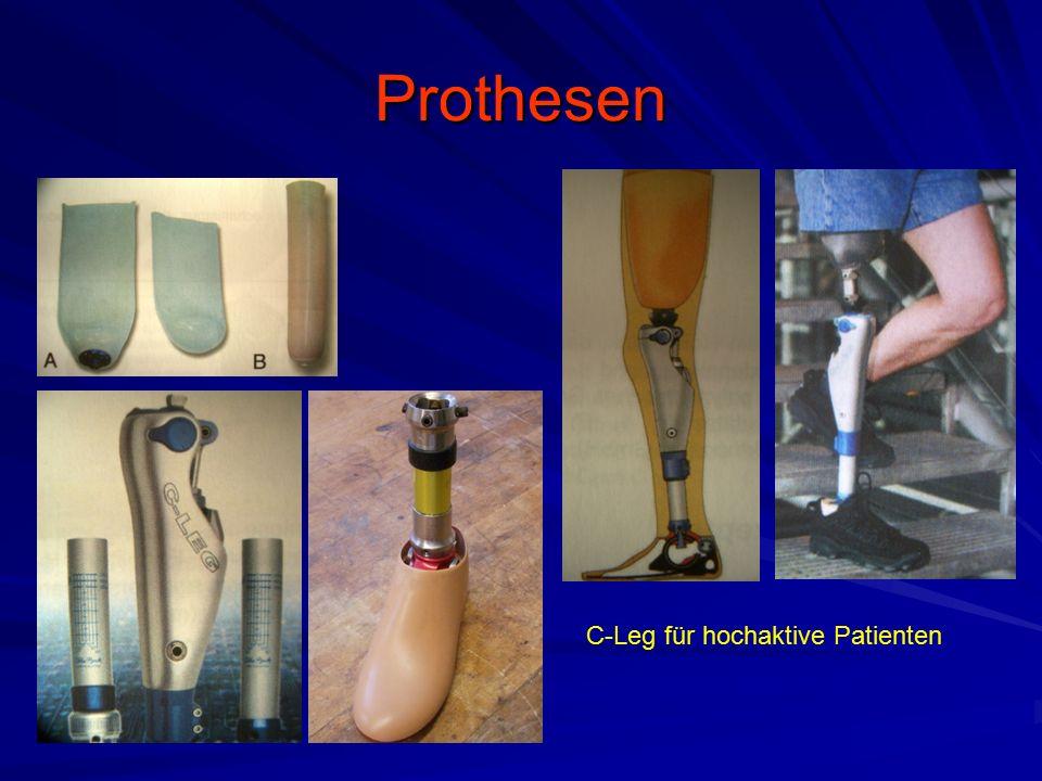 Prothesen C-Leg für hochaktive Patienten