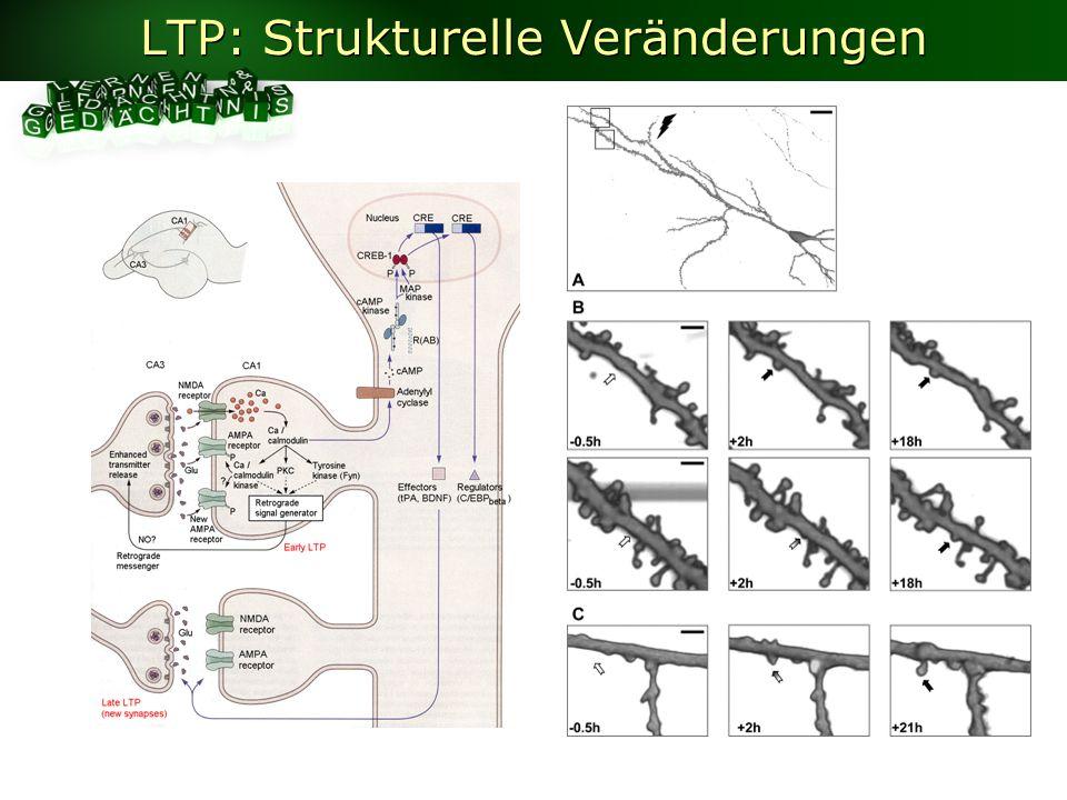 LTP: Strukturelle Veränderungen