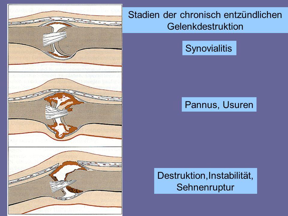 Stadien der chronisch entzündlichen Gelenkdestruktion Synovialitis Pannus, Usuren Destruktion,Instabilität, Sehnenruptur