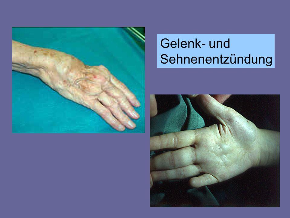 Gelenk- und Sehnenentzündung