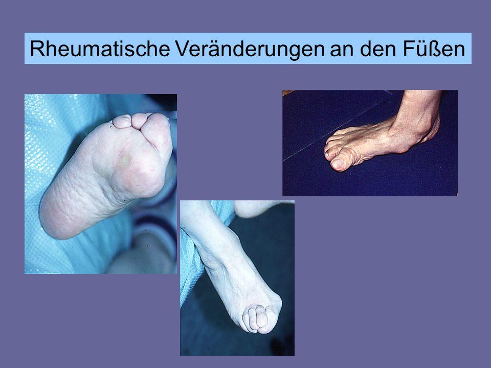 Rheumatische Veränderungen an den Füßen