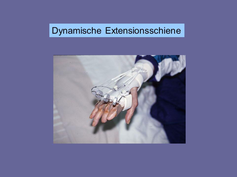 Dynamische Extensionsschiene