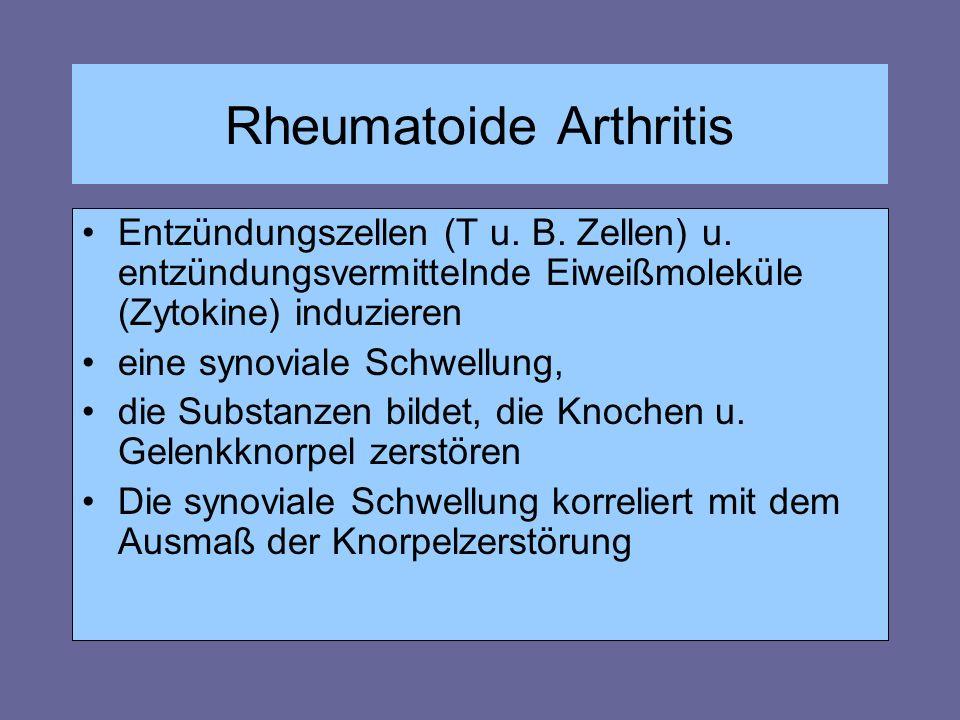 Rheumatoide Arthritis Entzündungszellen (T u. B. Zellen) u. entzündungsvermittelnde Eiweißmoleküle (Zytokine) induzieren eine synoviale Schwellung, di