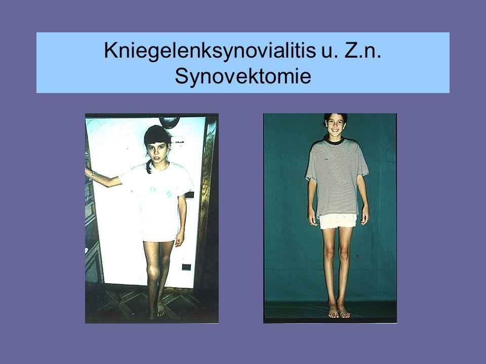 Kniegelenksynovialitis u. Z.n. Synovektomie