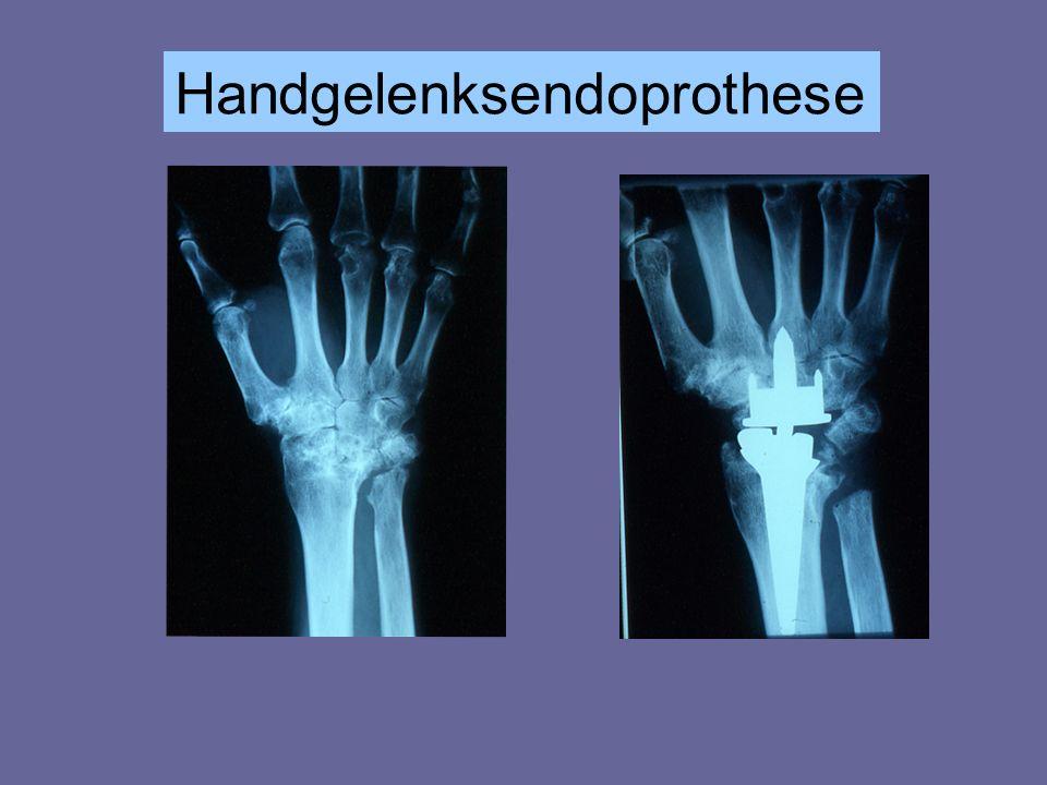 Handgelenksendoprothese