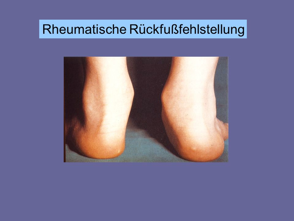 Rheumatische Rückfußfehlstellung