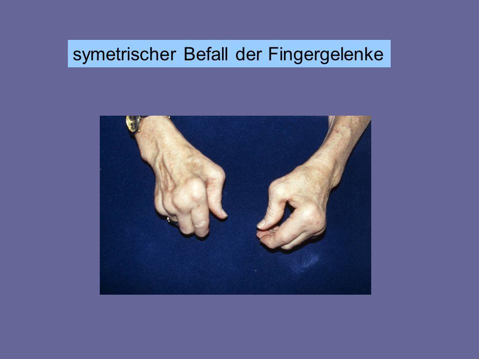 symetrischer Befall der Fingergelenke