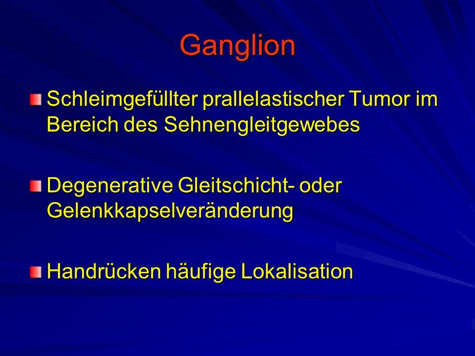 Ganglion Schleimgefüllter prallelastischer Tumor im Bereich des Sehnengleitgewebes Degenerative Gleitschicht- oder Gelenkkapselveränderung Handrücken häufige Lokalisation