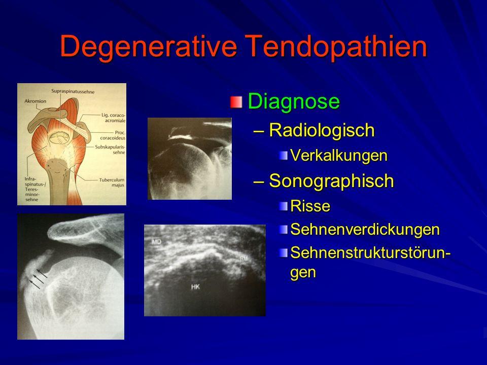 Degenerative Tendopathien Diagnose –Radiologisch Verkalkungen –Sonographisch RisseSehnenverdickungen Sehnenstrukturstörun- gen