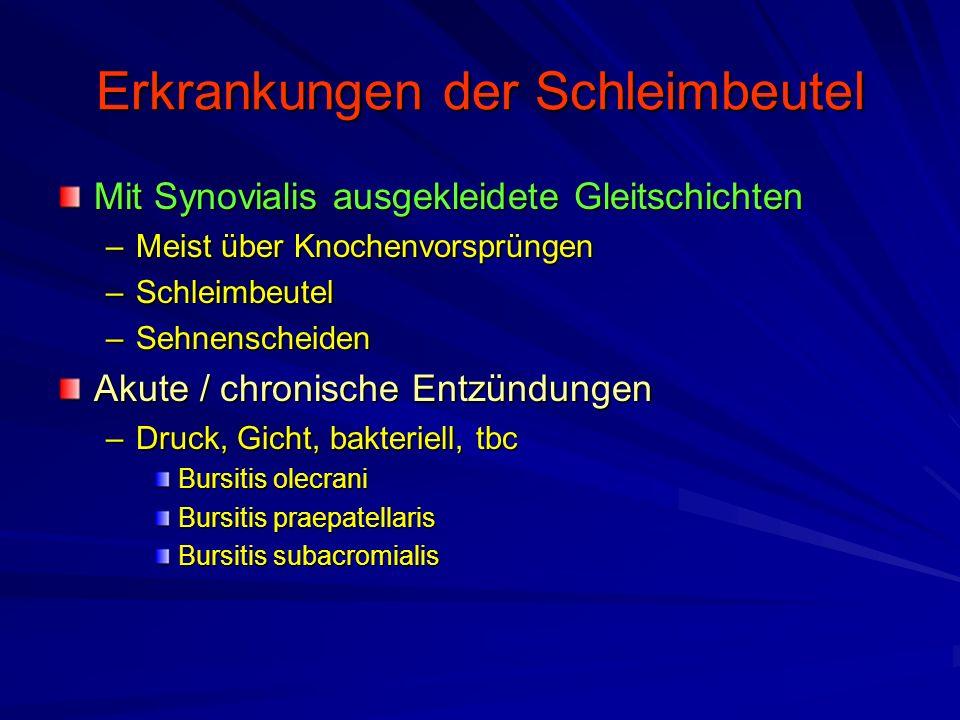 Erkrankungen der Schleimbeutel Mit Synovialis ausgekleidete Gleitschichten –Meist über Knochenvorsprüngen –Schleimbeutel –Sehnenscheiden Akute / chronische Entzündungen –Druck, Gicht, bakteriell, tbc Bursitis olecrani Bursitis praepatellaris Bursitis subacromialis