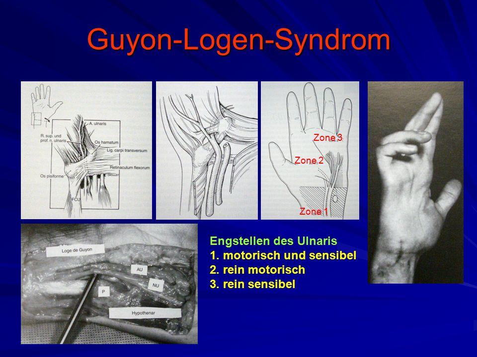 Guyon-Logen-Syndrom Engstellen des Ulnaris 1. motorisch und sensibel 2. rein motorisch 3. rein sensibel Zone 1 Zone 2 Zone 3