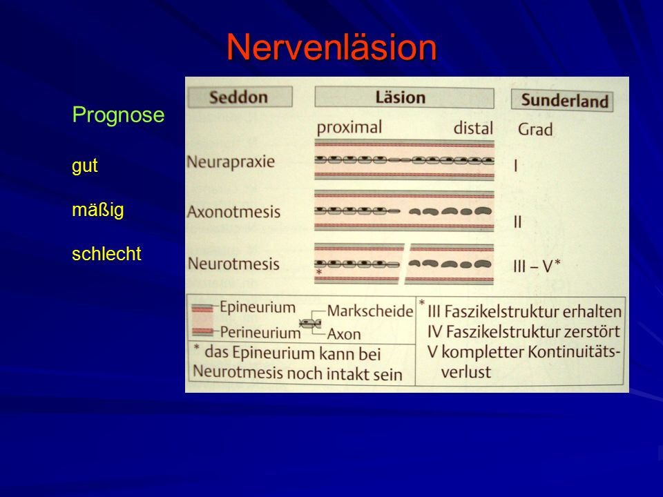 Nervenläsion Prognose gut mäßig schlecht