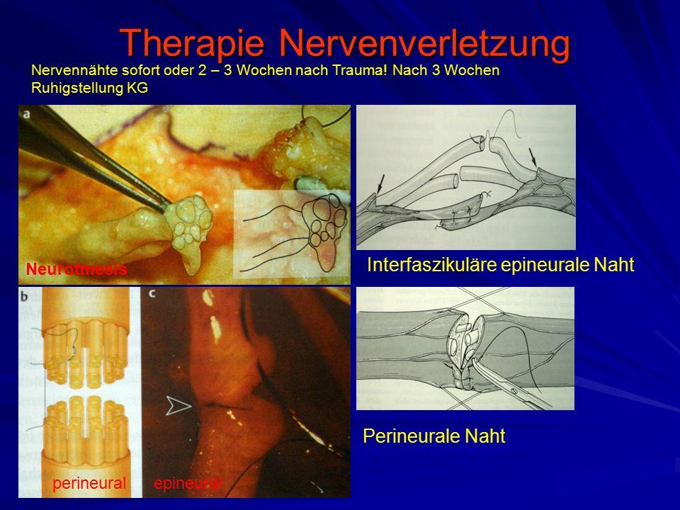 Therapie Nervenverletzung Therapie Nervenverletzung Perineurale Naht perineuralepineural Neurotmesis Interfaszikuläre epineurale Naht Nervennähte sofo