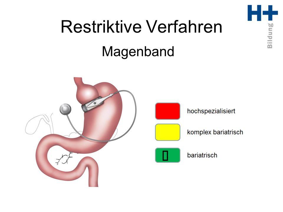 Restriktive Verfahren Magenband