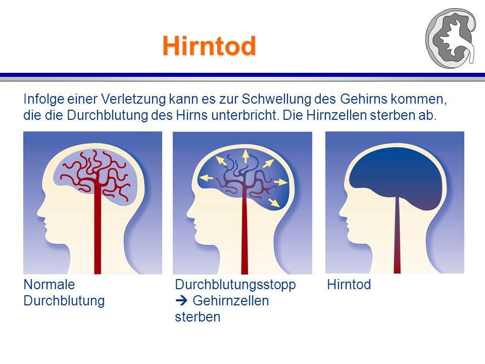 Hirntod Infolge einer Verletzung kann es zur Schwellung des Gehirns kommen, die die Durchblutung des Hirns unterbricht.