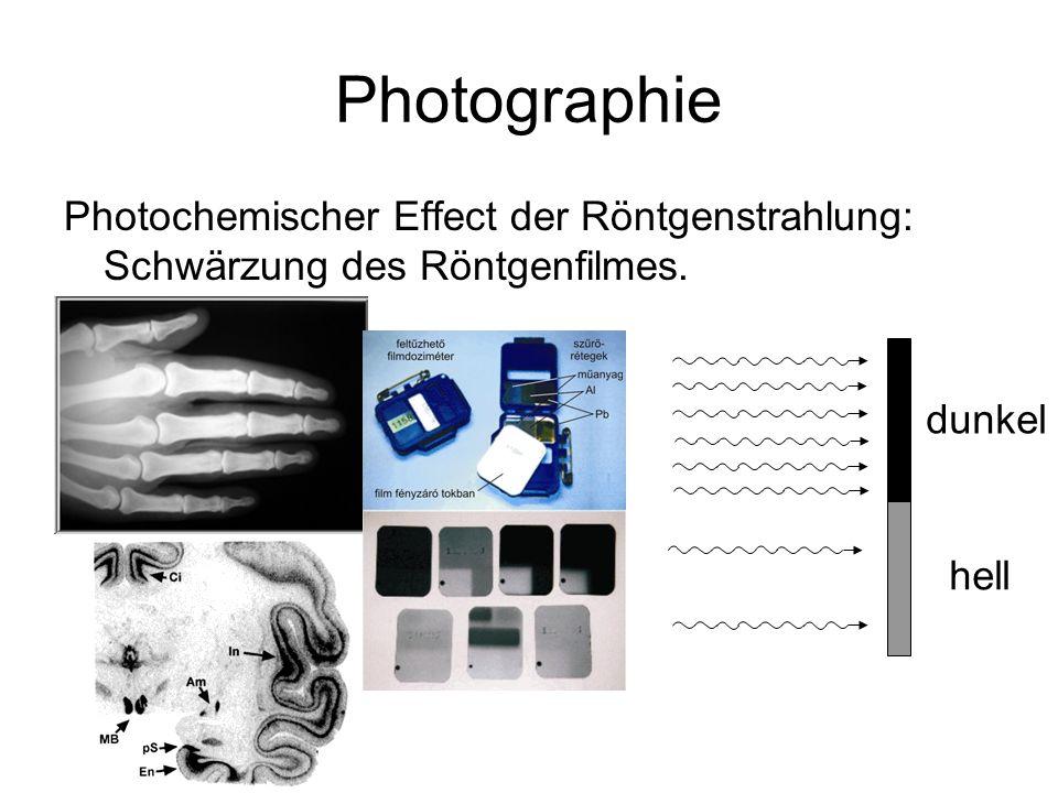 Photographie Photochemischer Effect der Röntgenstrahlung: Schwärzung des Röntgenfilmes. dunkel hell