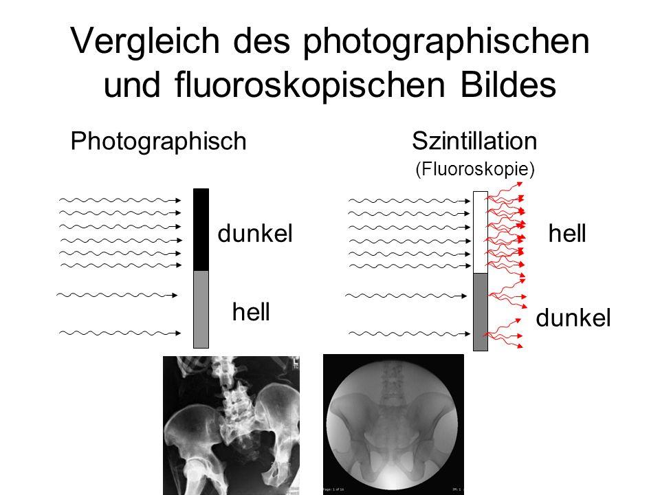 Vergleich des photographischen und fluoroskopischen Bildes Photographisch Szintillation (Fluoroskopie) dunkel hell dunkel