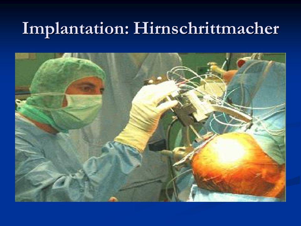 Implantation: Hirnschrittmacher