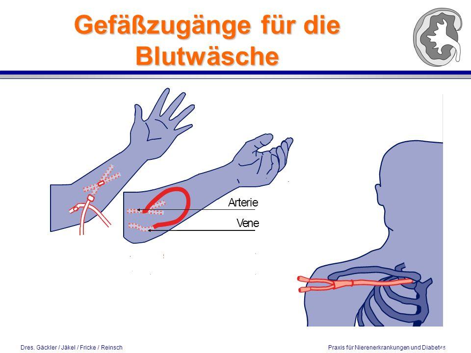 Dres. Gäckler / Jäkel / Fricke / Reinsch Praxis für Nierenerkrankungen und Diabetes Gefäßzugänge für die Blutwäsche 5 / 2002
