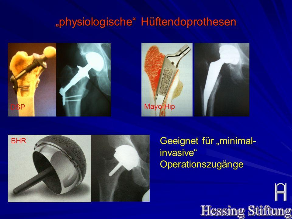 """""""physiologische"""" Hüftendoprothesen DSP Mayo-Hip BHR Geeignet für """"minimal- invasive"""" Operationszugänge"""